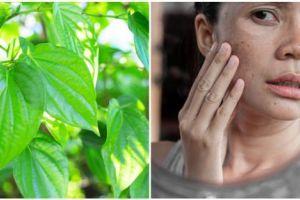 12 Manfaat daun sirih untuk kecantikan, mencegah jerawat