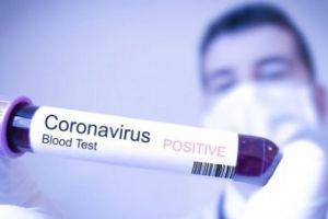 WN Inggris Terinfeksi Virus Corona di Resor Pegunungan Alpen Perancis