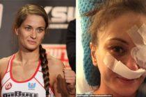 Atlet MMA Kehilangan Wajah Cantiknya Usai Dihajar Petarung China